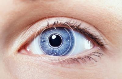 pregled i ordiniranje kontaktnih leca